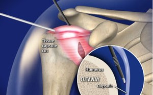 Arthroscopic Capsular Release