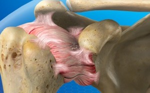 Diagnostic Arthroscopy (Shoulder)