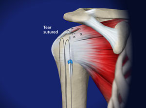 Omaha Arthroscopic Rotator Cuff Repair