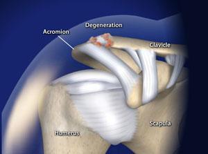 omaha ac joint arthritis