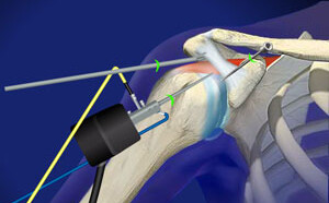 Arthroscopic Impingement Surgery