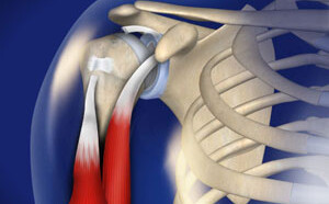 Biceps Tendon Rupture
