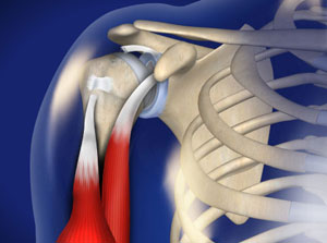 omaha biceps tendon rupture