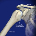 reverse total shoulder replacement