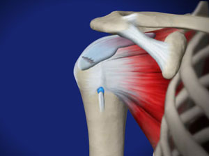 omaha rotator cuff injuries