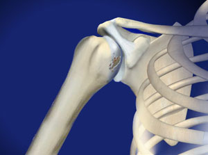 omaha shoulder arthritis
