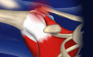Impingement Syndrome (Bursitis)