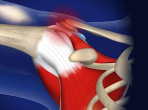 omaha shoulder impingement syndrome