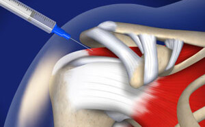 Subacromial Injection