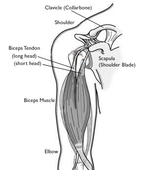 biceps tendon tear at the shoulder omaha