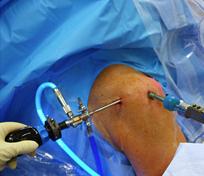 omaha rotator cuff injuries