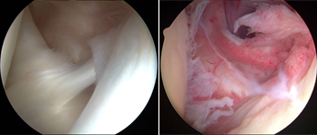 omaha shoulder arthroscopy