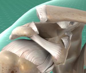 Arthroscopic Acromioclavicular (AC) Joint Separation Repair
