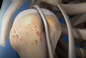 Biceps Tenodesis Surgery